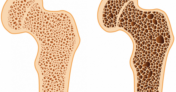 11Osteoporosis and Exercise