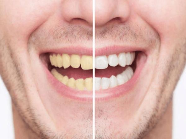 Неужели желтые лучше белых? Мифы и правда о наших зубах